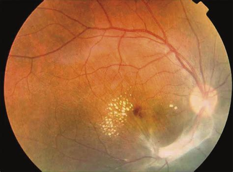 Outbreak of Acquired Ocular Toxoplasmosis Involving 248